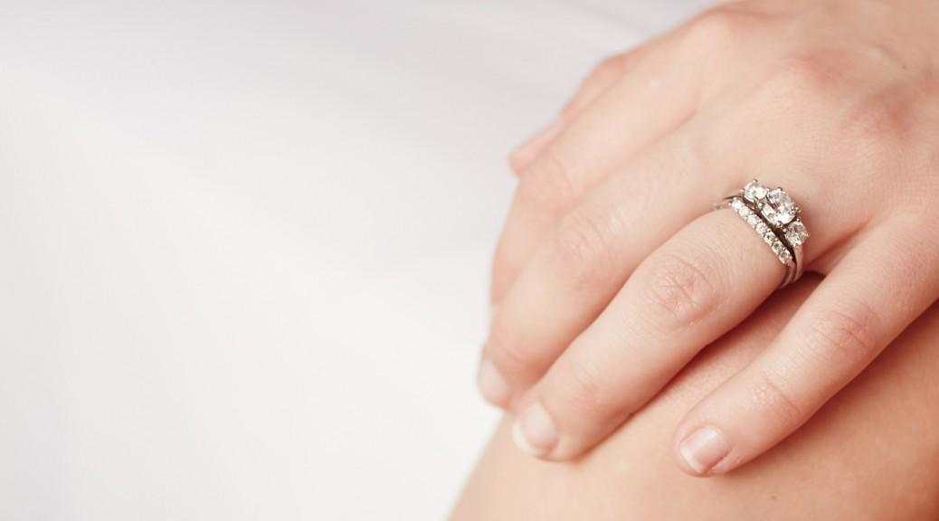 Kontaktallergie beim Ehering vermeiden